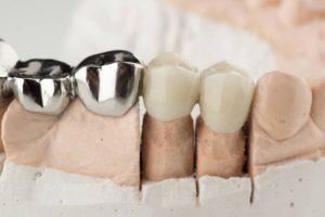 Restorative dental treatment in Pune